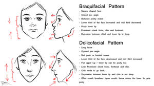 Facial Patterns