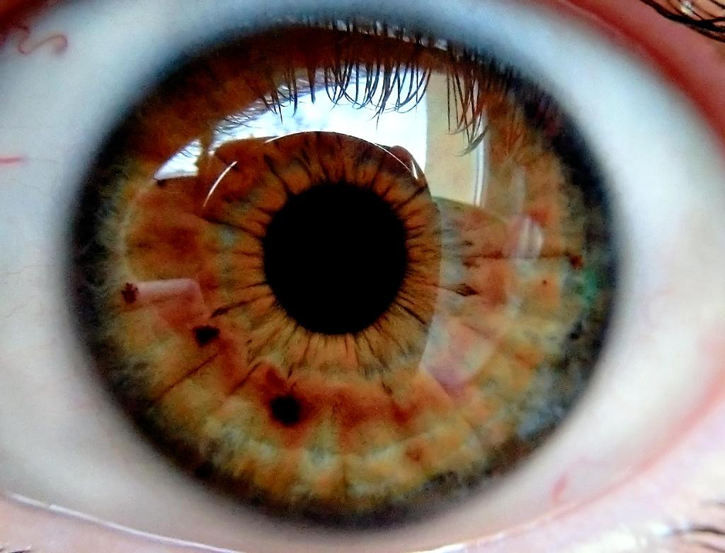right eye by MisterMettler