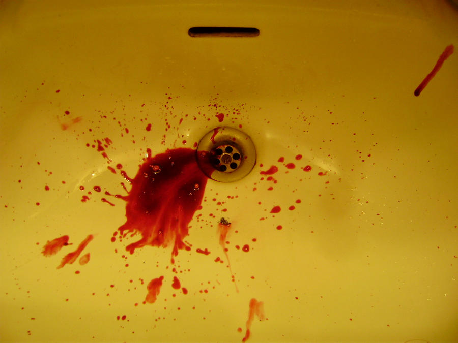 bright red blood in vomit k--k.club 2017, Skeleton