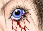 Weeping Eye