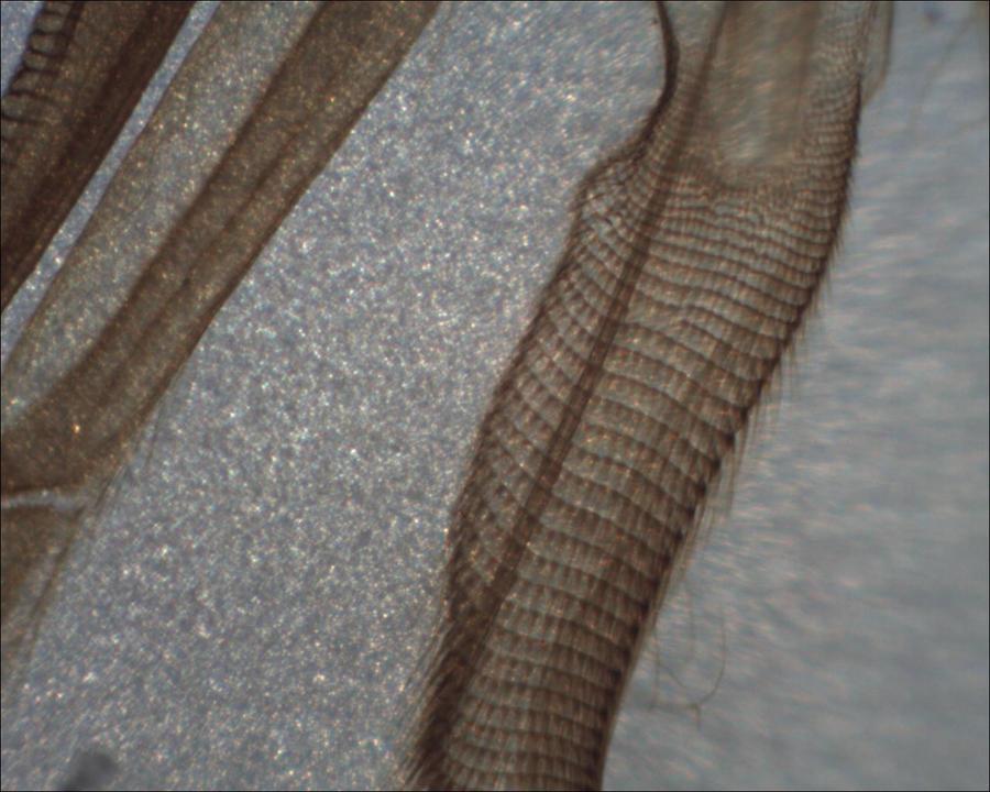 Microscope: House bee Proboscis Top by Soldeen111
