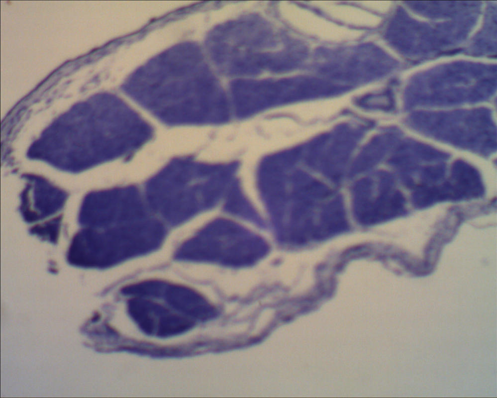 Microscope: Dog Skeletal Muscle by Soldeen111