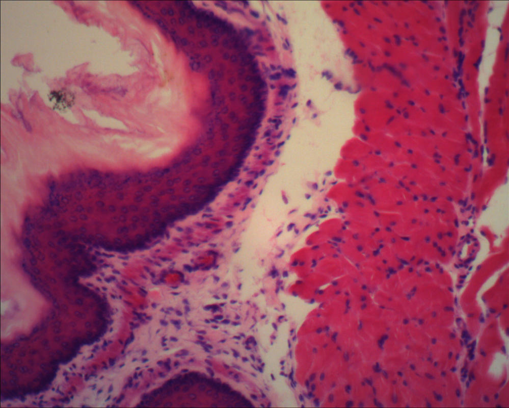 Microscope: Dog Esophagus Closer by Soldeen111