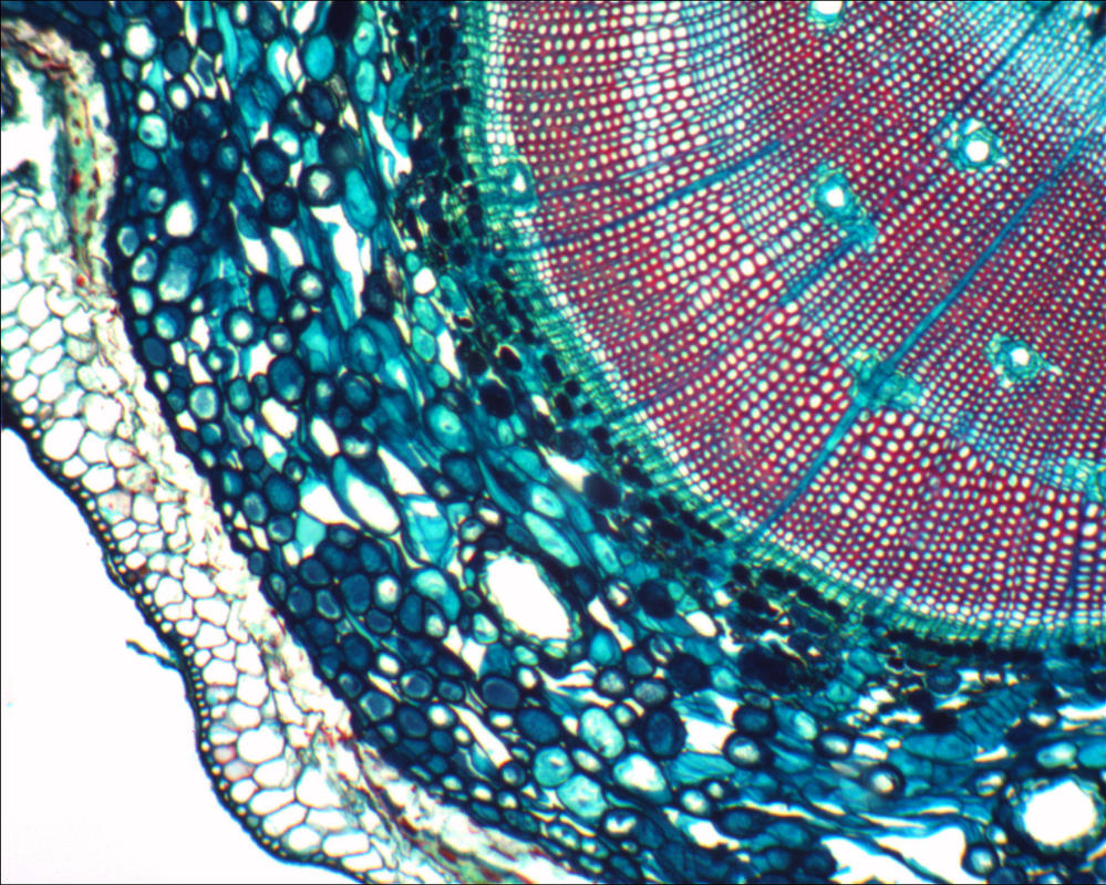 Microscope: Pine Stem by Soldeen111