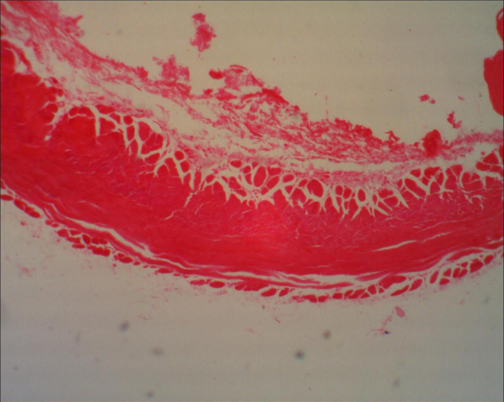 Microscope: Squamous Epithelium by Soldeen111