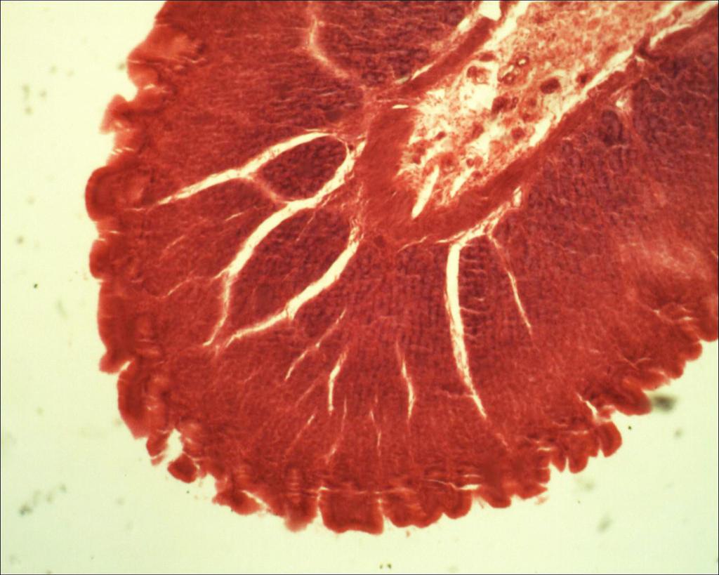 Microscope: Corpus ventriculi by Soldeen111
