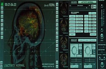 CIA MRI brainscanTORTUEWARE