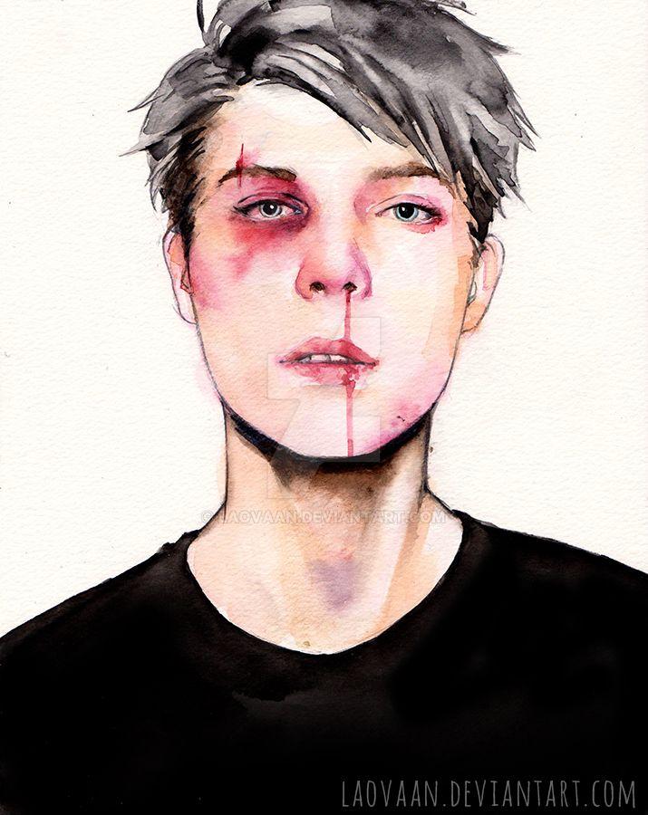 Bruised by Laovaan
