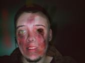 Art (none EoRelated) Bloody_zombie_by_cyanidekid-d3bg41r