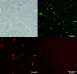 DIC and Antibody Stains
