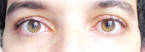 Wender_ Eyes