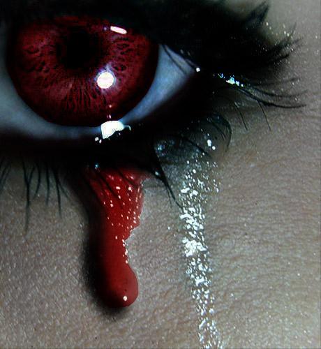 Кровь из глаз на аву 3