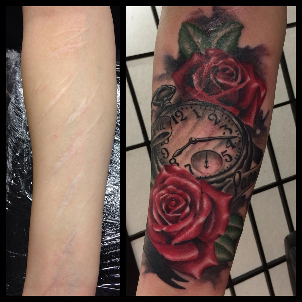Scar cover up tattoo by TatsHuka on DeviantArt