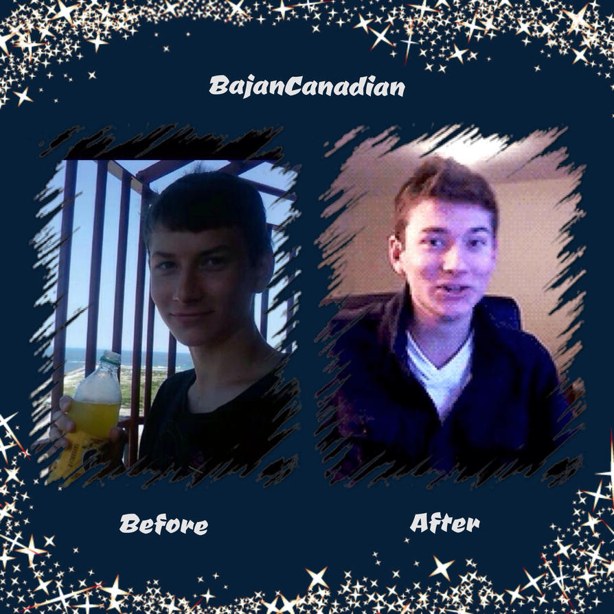 BajanCanadian Before And After By SweetLuvs1D