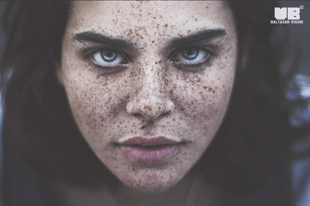 Freckles by BaltasarVischi