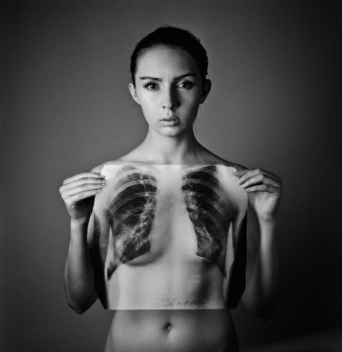 x-ray by psychiatrique