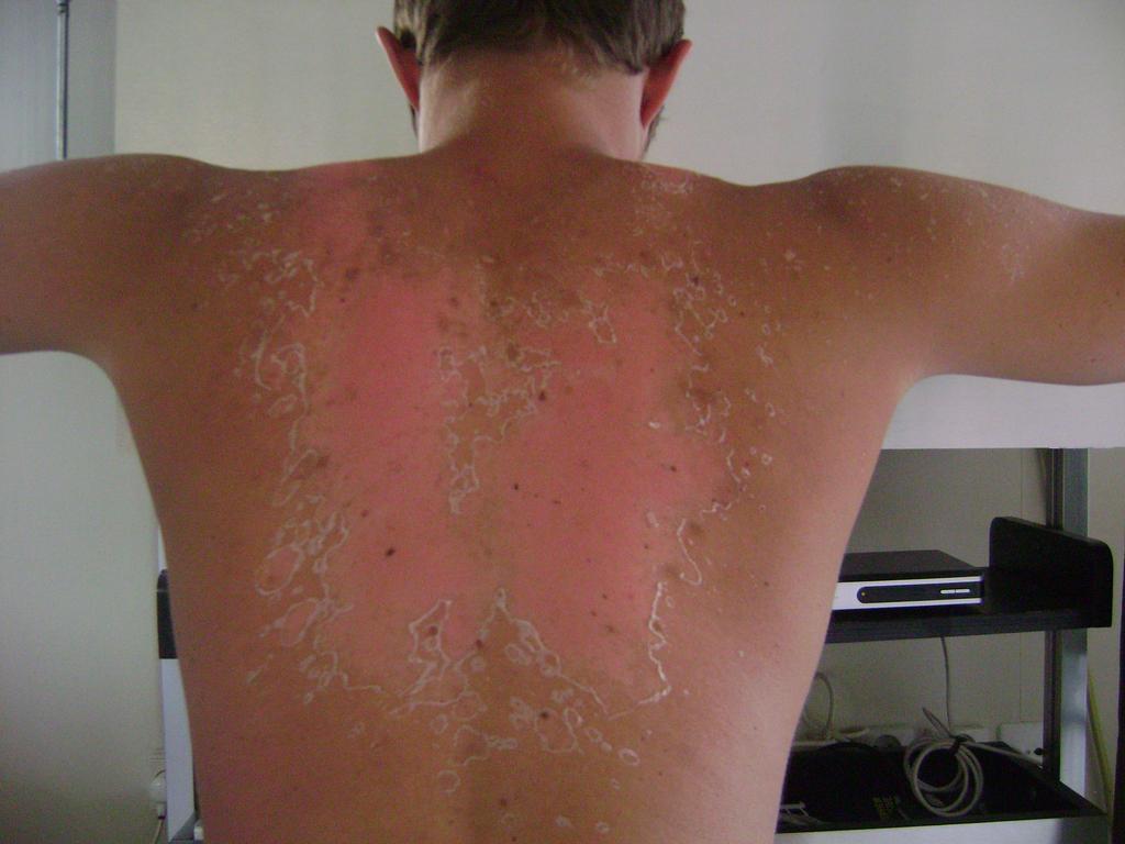 Coup de soleil erytheme solaire - Transformer un coup de soleil en bronzage ...