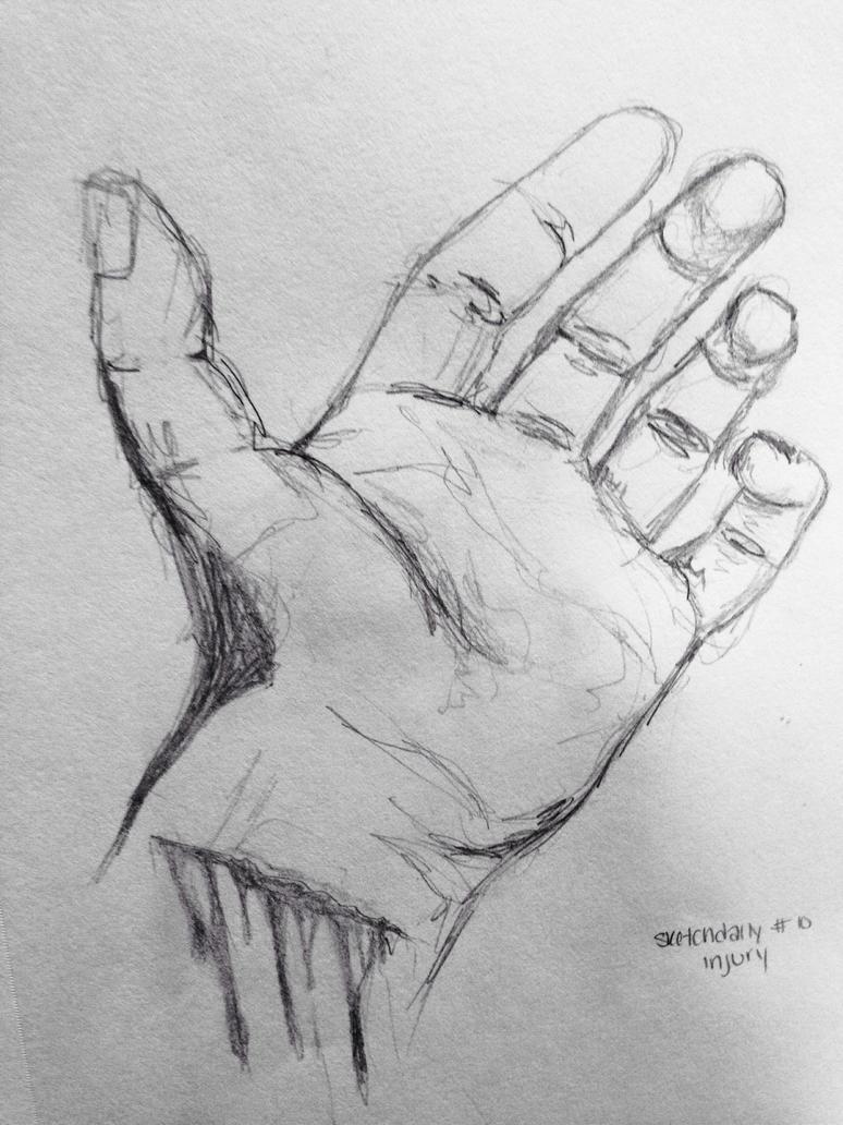 Daily Sketch #10: Injuries by lexigogesnally