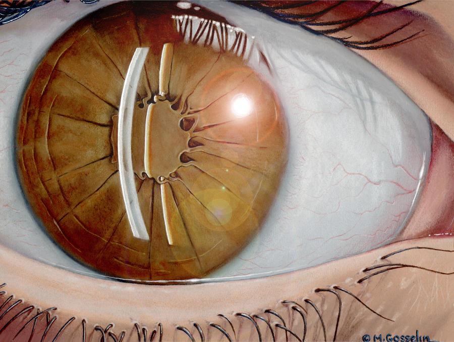 Iris deformation