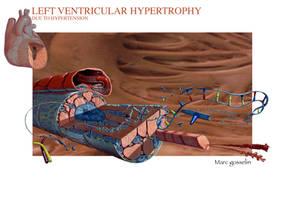 LV Hypertrophy