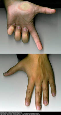 Hand Set 01