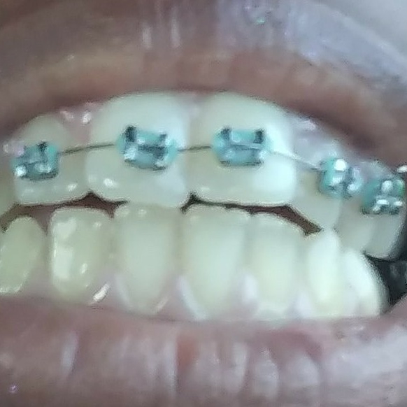 I got my braces yesterday for the first time!!~ by CutemayStrikesAgain