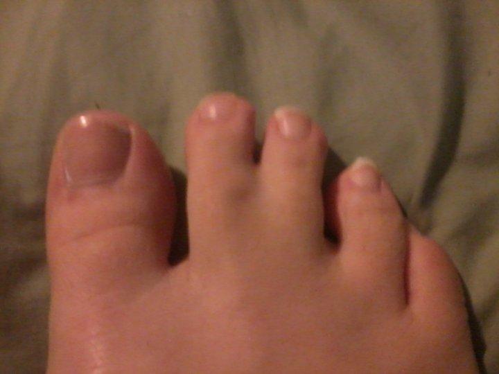 webbed toes by 3rdstrikewalty on deviantart, Skeleton