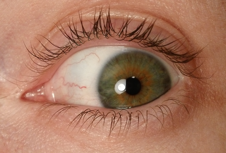 My Left Eye by SeraphDreamer