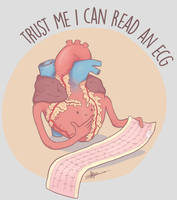 Trust me I can read an ECG