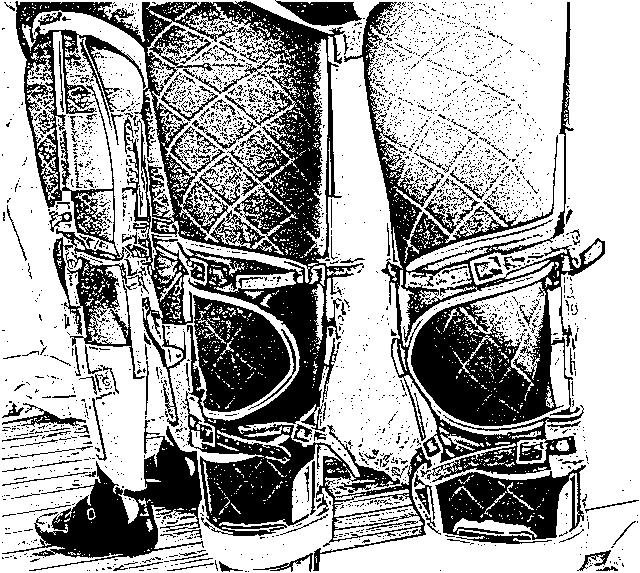 Reflection on calipers by klabien