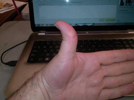 Left Artist Thumb (double jointed)