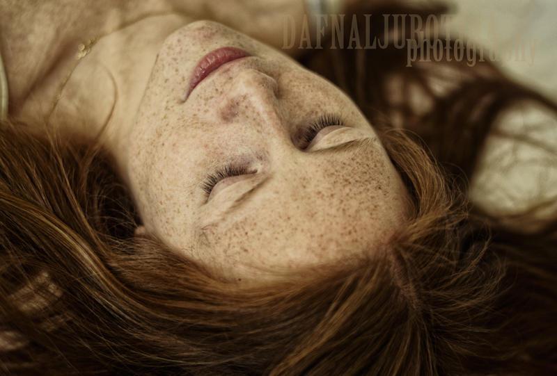 Freckle craze by dafnalj