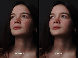 Photo Retouching - Skin Retouch Before And After