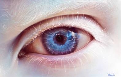 albino eye