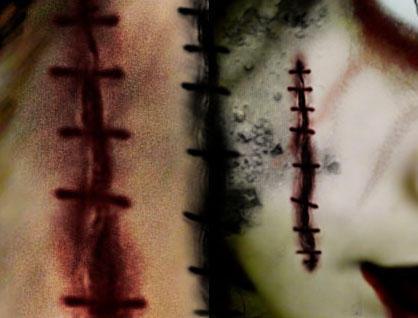 body stiches by anamarianthony