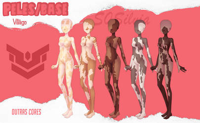 Amor doce-pack-vitiligo by S0Silvia