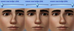 uneven nose bridge