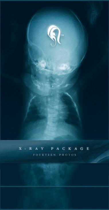 Package - X-ray - 1 by resurgere