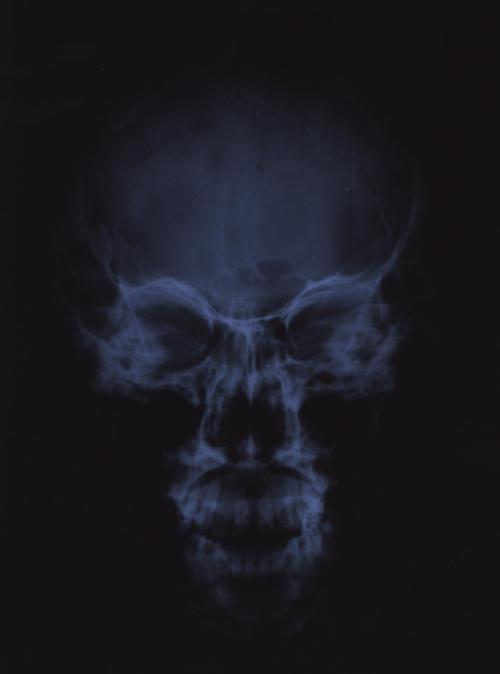 File Name   X -ray skull jpg Resolution   500 x 674 pixel Image Type    X Ray Skull Views