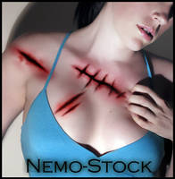 Wound brushes by nemo-stock