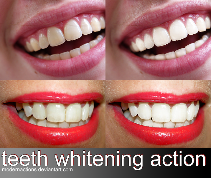 "action 056 ""TEETH WHITENING"" by ModernActions"