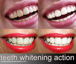 action 056 'TEETH WHITENING'