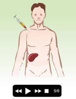 The immunosupressant efect by AmadeuBlasco
