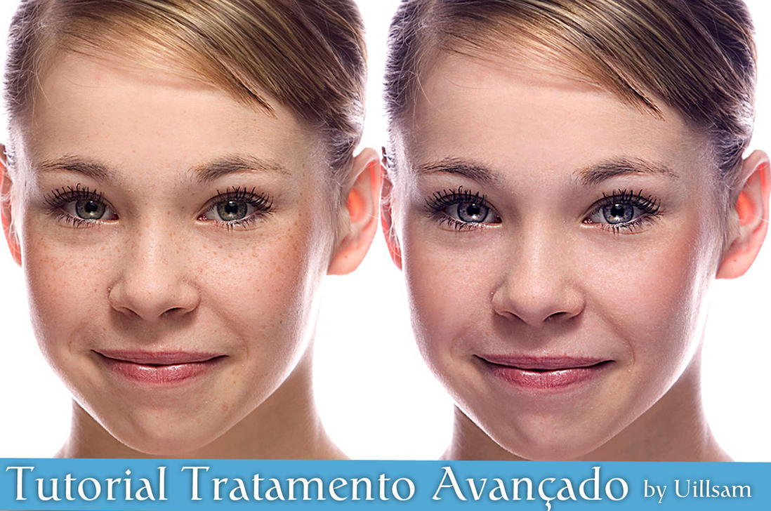 tratamento de pele by uillsam