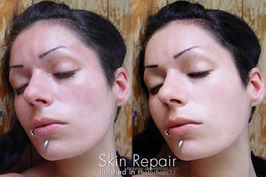 SkinRepair by masray