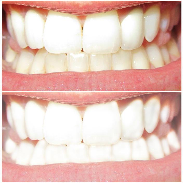 Clareamento Dental By Brenomanali On Deviantart