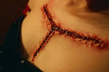 Autopsy-Cut by Snaecka