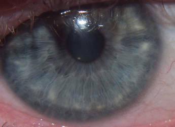 Eye by liverecs