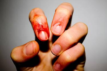 Bleeding finger by BlindSquare