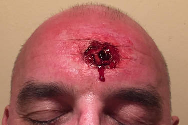 Bullet Exit Wound by way-kooks